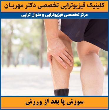 سوزش پا بعد از ورزش