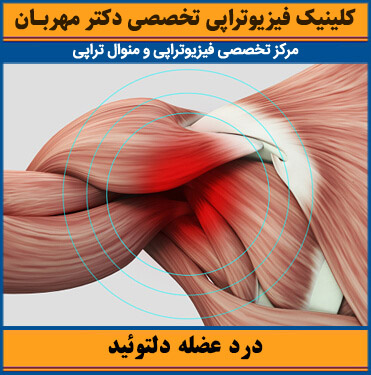 درد عضله دلتوئید