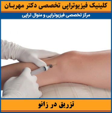 تزریق در مفصل زانو
