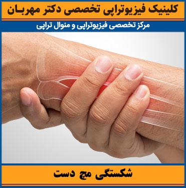 شکستگی مچ دست