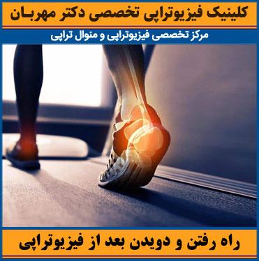راه رفتن و دویدن بعد از شکستگی مچ پا