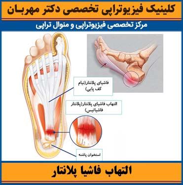 التهاب فاشیا پلانتار