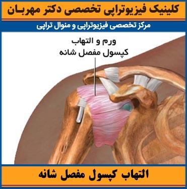 التهاب کپسول مفصل شانه