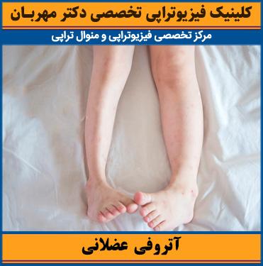 آتروفی عضلانی