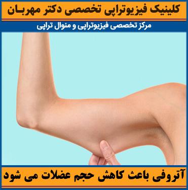 آتروفی عضلانی باعث کاهش حجم عضلات می شود